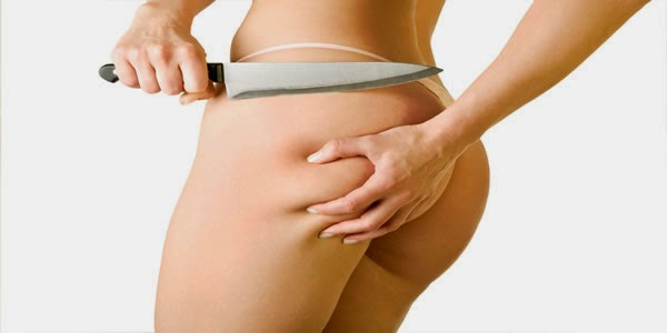 Overview of Cellulite Treatments